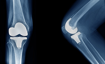 Joint Replacement Surgery Considerations